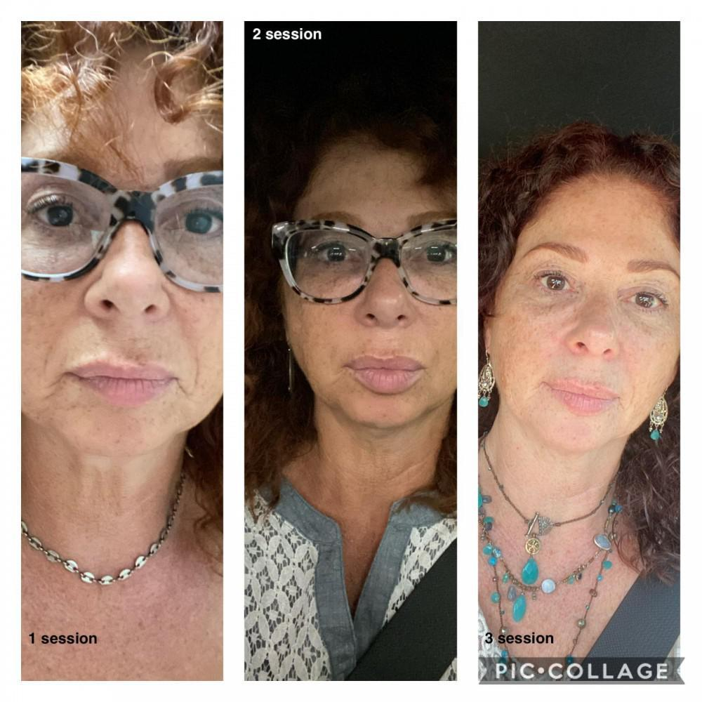 Natural facelift, made possible by acupuncture and oriental medicine, offers long lasting results.